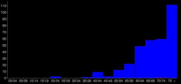 Graph: Population by Age and Hispanic or Latino Origin, 2000 Census - Ryderwood, Washington - Census Viewer